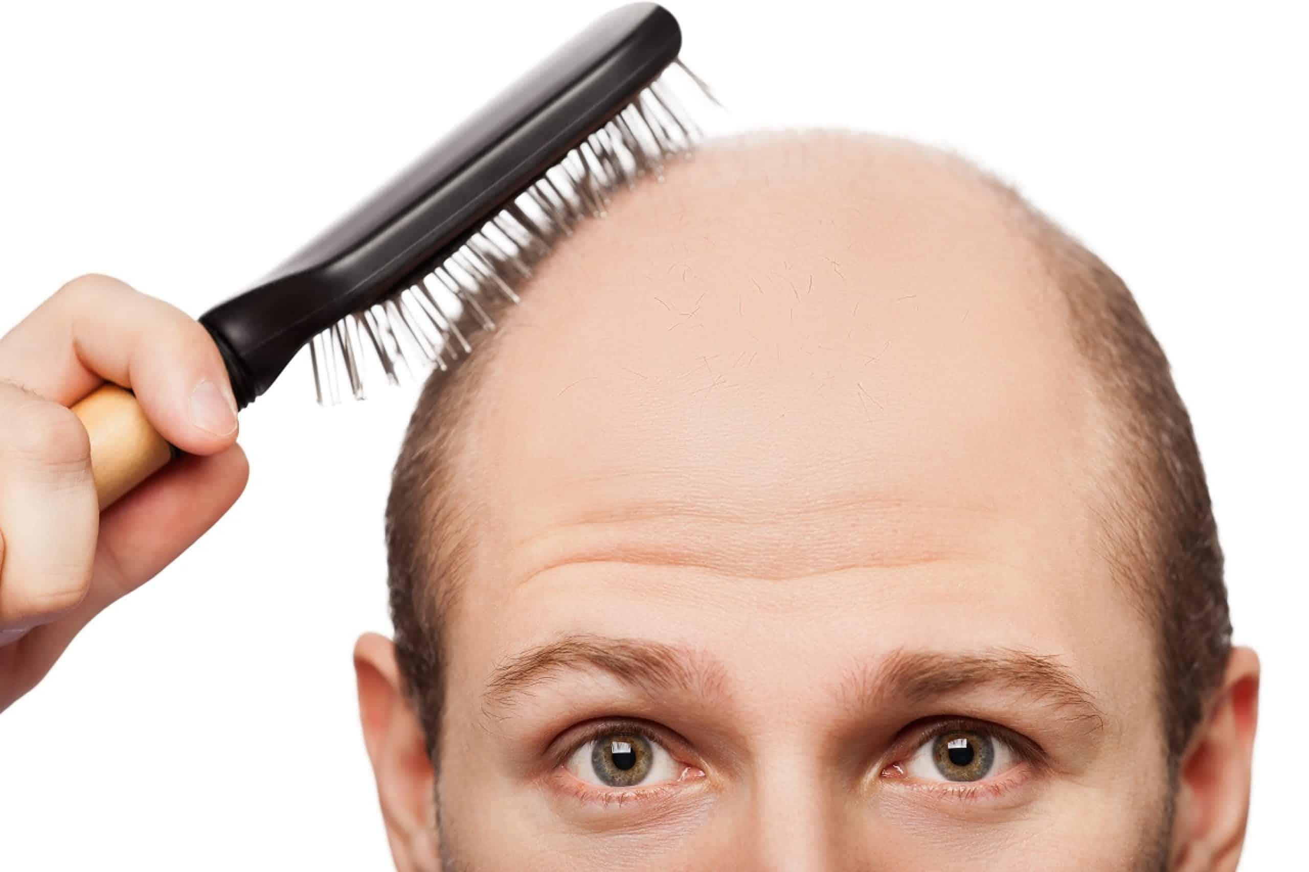 Pour la densité des cheveu les moyens efficaces